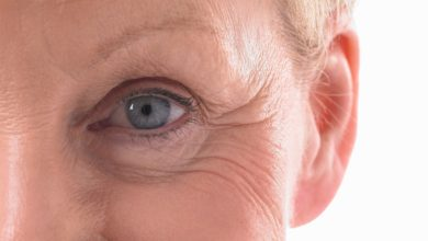 Photo of Things you Need to Know About Eye Bag Surgery