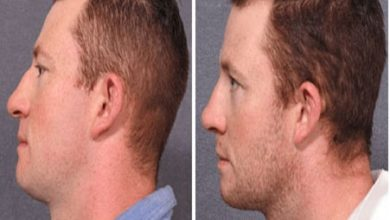 Photo of Men Can Change Their Face Features With These Procedures