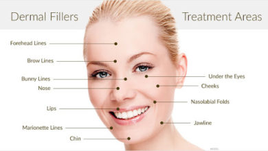 Photo of What's Great about Dermal Fillers