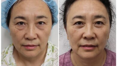 Photo of Amazing Procedures That Can Enhance Your Looks
