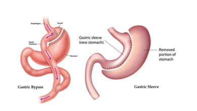 Photo of Gastric Bypass vs. Gastric Sleeve