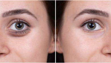 Photo of Get A Refreshed And Revitalised Look With These Tear Trough Fillers