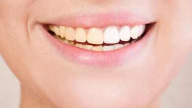 Photo of Reasons for Teeth Discolouration and Methods to Follow for Avoiding It