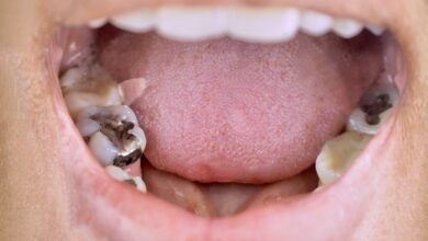 Photo of Tooth Fillings: What are the Different Types?