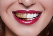 Photo of Dental Veneers? What Types of Problems Can They Fix?