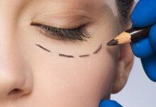 Photo of How To Get Rid of Under Eye Wrinkles + Best Anti-Wrinkle Cream