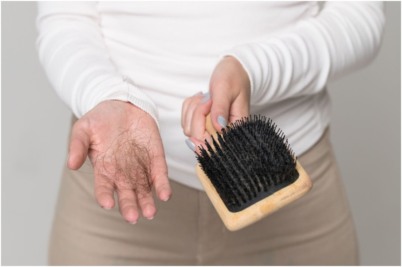 Effective Home Remedies to Solve Postpartum Hair Loss