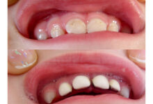 Photo of Tooth Crowns: All You Need to Know